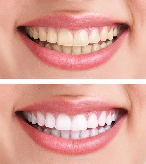 美歯口「30daysホワイトニングキット」の効果