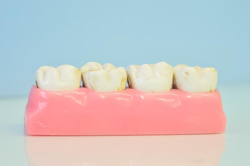 歯のホワイトニング種類